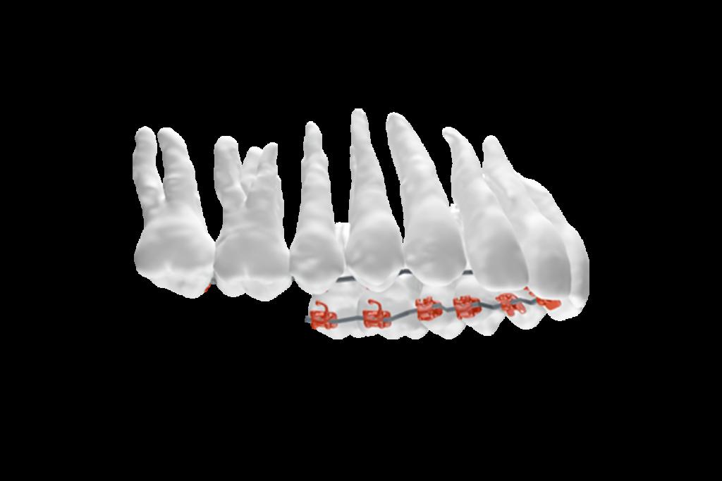 apparecchio linguale per denti catanzaro